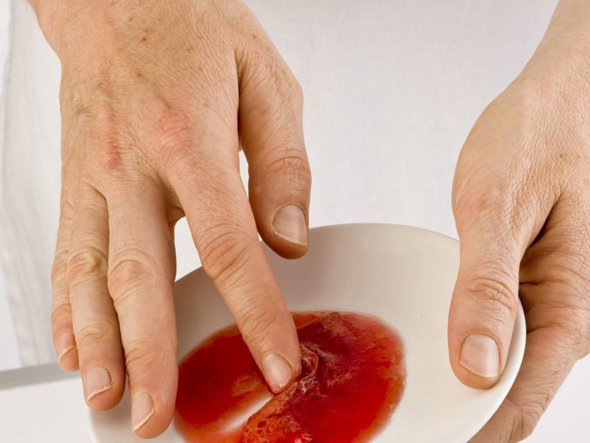 confettura-con-le-prugne-rosse immagine